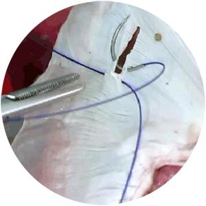 ruptured diaphragm repair
